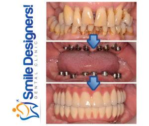bridge-sur-implants-dentaires-ref3