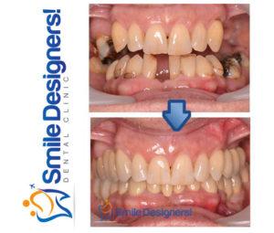 bridge-sur-implants-dentaires-ref5