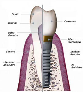 implant-dentaire-fr