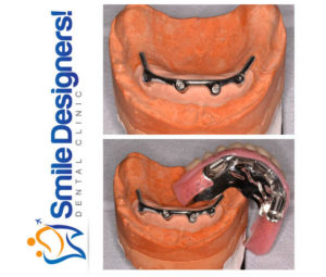prothese-sur-implants--ref1