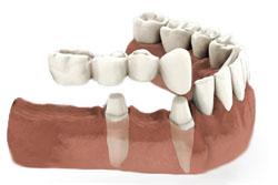 bridge-dentaire-cantilever