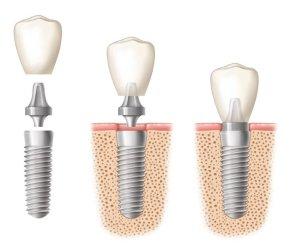 implant-et-pilier